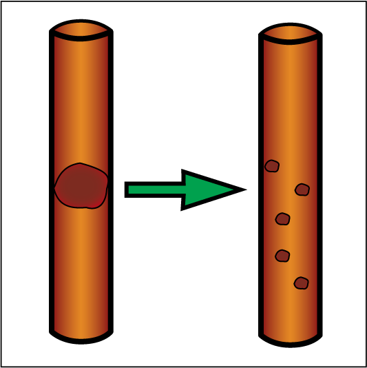 diamorphine hydrochloride. Trombolitik